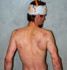 Bjørndalens svoger brutalt banket opp av OMON-folk